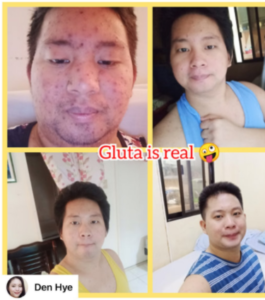 White Allure Plus 7 in 1 Enhanced Glutathione photo review